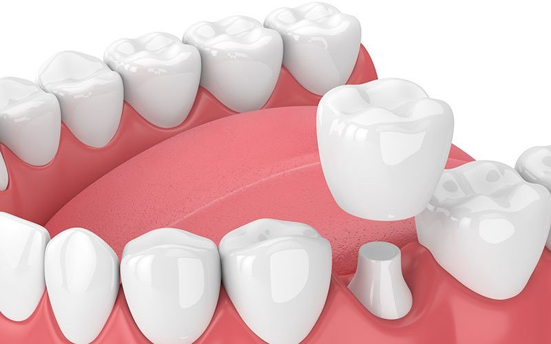 All You Wanted To Know About Dental Crowns