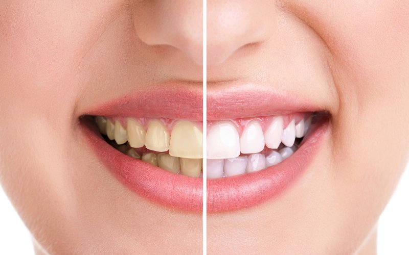 Find the Right and Reliable Teeth Whitening Bedfordshire